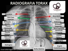 Brain Anatomy, Medical Anatomy, Anatomy And Physiology, Medicine Student, Medicine Notes, Nursing Notes, Nursing School Tips, Radiology Imaging, Family Nurse Practitioner