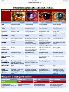 Non traumatic red eye Opthalmic Technician, Eye Cataract, Pathophysiology Nursing, Optometry School, Corneal Ulcer, Eye Anatomy, Eye Facts, Vision Eye, Human Anatomy And Physiology