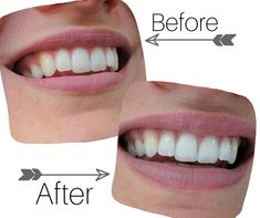 Nuskin Toothpaste, Ap 24 Whitening Toothpaste, Nu Skin, Healthy Skin Care, White Teeth, First Photo, 3 Months, 20 Years, I Got This
