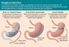 Weight-loss surgery: A gut-wrenching question : Nature News & Comment