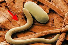 """Secretele: Deparazitarea intestinelor - Un """"medicament"""" necesar o data la 6 luni!"""