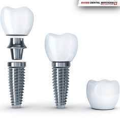 Dental Implants can help prevent the deterioration of teeth caused by the use of removable dentures.  -------------------------------------------- www.swissdentalservices.com/en #dentist#implants#smile#clinic#ismile