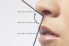 La RinomodelaciónEsquema Contenidos1 La Rinomodelación2 Visita3 Preparación4 La técnica5 Materiales6 Tiempo7 Retoques8 Indicaciones9 Resultados9.1 Relacionado Técnica médica no quirúrgica . Posiblemente una de los avances más importantes en la medicina estética del XXI por la sencillez y la ausencia de riesgo en la estética nasal. Consiste en la introducción con microinfiltraciones de materiales de relleno …