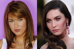 10 Celebs Before and After Cosmetic surgery - Dailymix