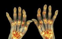 7 Surprising Arthritis Symptoms Every Woman Needs To Know