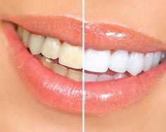 Sorriso brillante: ablazione del tartaro e sbiancamento al bicarbonato per un sorriso splendente a soli 24,9 € anziché 90 €. Risparmi il 72%!   Scontamelo