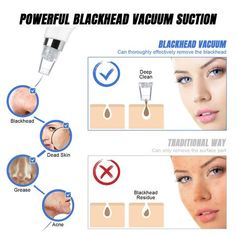 Item ID: Squeezing blackheads is painful and may create microscopic tears in your skin, making it easier for more bacteria to enter. Remove Blackheads From Nose, Blackhead Vacuum, Blackhead Remover, Shrink Pores, How To Exfoliate Skin, Makeover Tips, Loose Skin, Skin Elasticity, Shopping