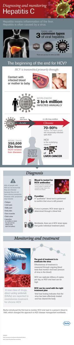 Diagnosing and monitoring Hepatitis C (HCV)