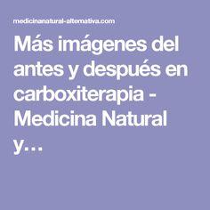 Más imágenes del antes y después en carboxiterapia - Medicina Natural y…
