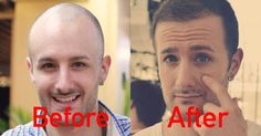 """Read Latest Blog Post On #baldness- """"A Common Problem And A Single Solution"""" #hairtransplant #blogger"""