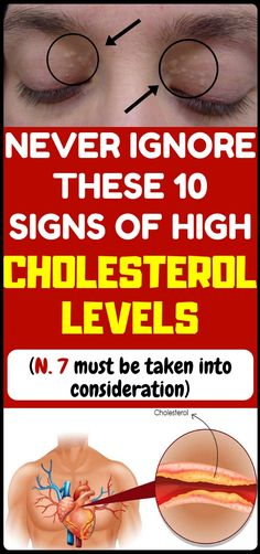Health If you have high cholesterol, your body will give you these 10 signs you should . If you have high cholesterol, your body will give you these 10 signs you should not ignore. Health and fitness, and prevent cholesterol and heart diseases. Lowering Ldl, Cholesterol Lowering Drugs, High Cholesterol Levels, High Cholesterol Symptoms, Cholesterol Guidelines, What Is High Cholesterol, Cholesterol Foods, Mental Problems, Health Problems