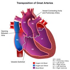 Anatomy of a heart with transposition of the great arteries Patent Ductus Arteriosus, Ventricular Septal Defect, Chest Tube, Cardiac Catheterization, Heart Murmur, Doctor For Kids, Heart Valves, Heart Anatomy, Congenital Heart Defect