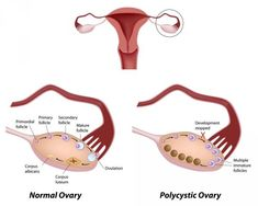 PCOS, PCOS diet, PCOS nutrition, polycystic ovary syndrome