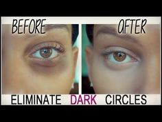 How To Cover DARK Under Eyes!! { Under Eye Bags} #UnderEyesCream