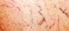 https://www.bonpasbon.com/varices-jambes-traitement-naturel/  Vous souffrez de ces disgracieuses varices jambes traitement naturel, homéopathique, médicamenteux, chirurgical.. lequel choisir pour enlever les varices?