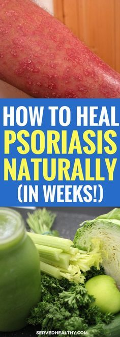 How To Naturally Heal And Clear Psoriasis (In Just Weeks) - Psoriasis Remedies - How To Get Rid of Psoriasis -Skincare Tips