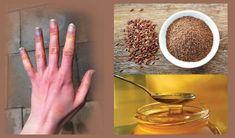 Pourquoi vos mains sont toujours froids glaciales? C'est surement dû à un phénomène inhabituel du corps humain : c'est le syndrome de Raynaud. La Maladie de Raynaud est une condition inhabituelle qui est en fait un symptôme d'une autre maladie, peut-être...
