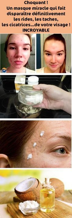 Choquant ! Un masque miracle qui fait disparaître définitivement les rides, les taches, les cicatrices…de votre visage ! INCROYABLE Natural Beauty Tips, Diy Beauty, Health Trends, Health Tips, Healthy Beauty, Health And Beauty, Beauty Games, Les Rides, Wrinkle Remover
