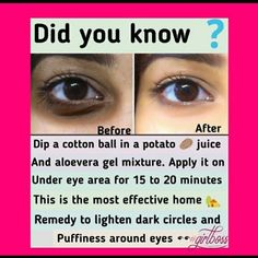Beauty Hacks Dark Circles, Beauty Tips For Glowing Skin, Health And Beauty Tips, Health Tips, Clear Skin Face, Face Skin Care, Dark Circle Remedies, Remedies For Dark Circles, Good Skin Tips