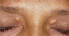 Aplique isto na sua pele e manchas e verrugas desaparecerão em poucos dias! | Cura pela Natureza
