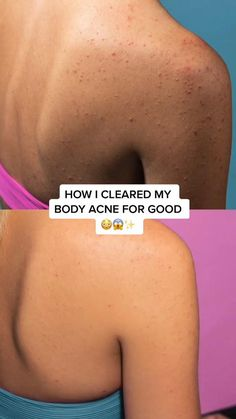 Beauty Tips For Glowing Skin, Clear Skin Tips, Healthy Skin Tips, Body Acne, Skin Care Routine Steps, Skin Care Remedies, Face Skin Care, Tips Belleza, Natural Skin Care
