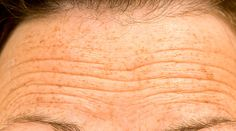 Ways to get rid of forehead wrinkles at home. Remedies for forehead wrinkles removal. Wrinkle Remedies, Dry Skin Remedies, Homemade Face Masks, Homemade Skin Care, Home Remedies For Wrinkles, Cellulite Scrub, Skin Care Routine For 20s, Acne Treatment, Top