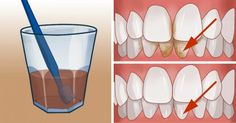 Top Oral Health Advice To Keep Your Teeth Healthy. The smile on your face is what people first notice about you, so caring for your teeth is very important. Unluckily, picking the best dental care tips migh Teeth Whitening Remedies, Natural Teeth Whitening, Vitamin B 1, Oral Health, Health Tips, Health Blogs, Dental Health, Brushing With Baking Soda, Home Remedies
