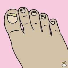 She bathes her feet in a mouthwash for 30 minutes. Health And Beauty Tips, Health Tips, Listerine Foot Soak, Foot Soak Recipe, Ingrown Toe Nail, Nail Fungus, Mouthwash, Feet Care, Health And Wellbeing