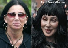 Cher Gets Plastic Surgery For A Facelift Bad Plastic Surgeries, Celebrity Plastic Surgery, Celebrity Cellulite, Face Lift Exercises, Celebs Without Makeup, Celebrities Before And After, Celebrity Stars, Bride Of Frankenstein, Knives