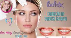 Correção do sorriso gengival É uma das finalidades do Botox na odontologia!! Se vc qdo sorri aparece muita gengiva e isso te incomoda venha fazer uma avaliação com a Dra Mary! Se realmente for indicado ao seu caso ela fará aplicação de botox necessária para essa correção! Para marcar uma consulta sem compromisso ligue ou mande Whats para 11981879881.. #botox #sorrisodeartista #botoxnaodontologia #odontocomamor #dentist #dentistoffice #dentistry #odontology #odontologia #odonto…
