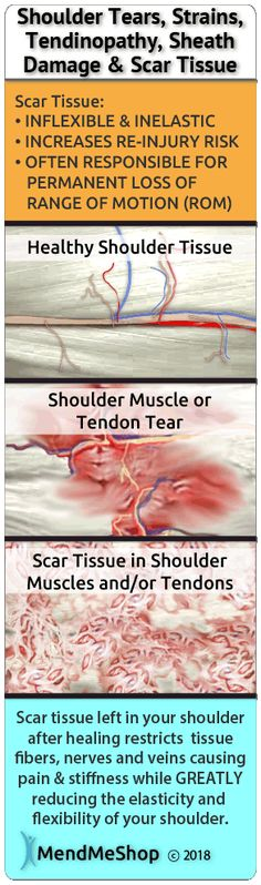 Scar Tissue development accelerates when the achilles tendon is constantly stressed or re-injured. Each time the achilles is injured, a bit more scar tissue will result and ultimately lead to further weakness of the tendon. Shoulder Injuries, Shoulder Muscles, Hip Arthroscopy, Tendon Tear, Rotator Cuff Tear, Hip Injuries, Shoulder Surgery, Stretching Exercises, Arthritis Exercises