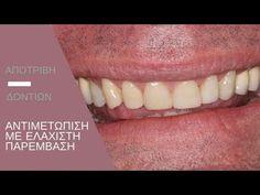 Αποτριβή δοντιών και αντιμετώπιση με ελάχιστη παρέμβαση