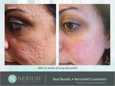 Before & After Pictures | Nerium International  30-day money back guarentee!! Tamiryan.nerium.com