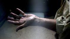 El Blog de Ingrid Peguero : Si ya tuviste zika, ¿te puedes volver a contagiar?...