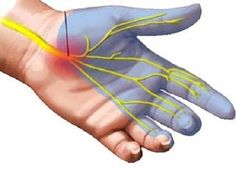 Carpal Tunnel Relief, Carpal Tunnel Syndrome, Nerve Damage In Arm, Carpal Tunnel Exercises, Gastrointestinal Disease, Relieve Constipation, Health And Beauty, Natural Remedies, Ice Packs