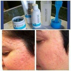 Acne scars. The best part will be the pictures a year from now...   Www.jaclynward.myrandf.com