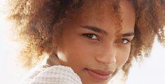 acne genezen - kan de zon acne genezen - La Peau Satin