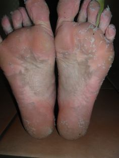 Dead Skin Acid Peel for your feet. (Kitchen Cabinet Remedy!) - Pamper Parties Pittsburgh