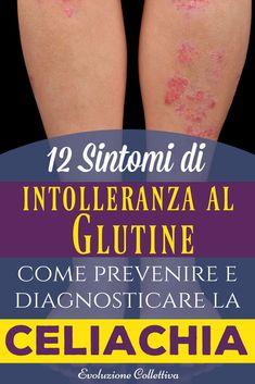 Intolleranza al glutine: scopri quali sono i 12 sintomi per capire se hai una sensibilità al glutine e come prevenire la celiachia.