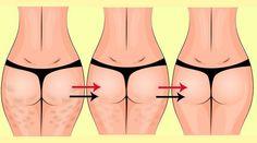 Diferente dos homens, mulheres têm tendência ao acúmulo de gordura no quadril e coxas e, por isso, o surgimento de celulite é algo normal no corpo feminino. Muitas, no entanto, se incomodam com o problema. Se é o seu caso, os exercícios físicos, junto a uma alimentação regrada, provavelmente sã