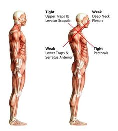 Here's why a forward head posture isn't good for you. It causes unnecessary strain on your neck and chest muscles. Stop poking your head while driving, watching TV or working on your computer. Chest Muscles, Back Muscles, Shoulder Range Of Motion, Fix Rounded Shoulders, Lower Traps, Pilates, Muscle Imbalance, Muscle Anatomy, Rotator Cuff