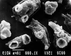 Image result for Naegleria fowleri