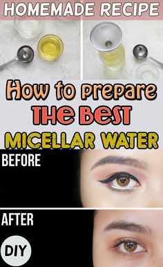 Her we've got the best micellar water recipe. Do it yourself at home.