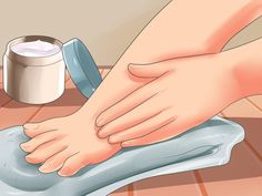 How+to+Treat+Dyshidrotic+Eczema+--+via+wikiHow.com