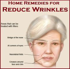 Inexpensive Ways to Get Rid of Deep Wrinkles Around the Mouth