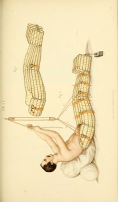 [Manual of surgical bandages, devices and dress...  Whole body