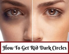 Looking for natural ways to get rid of dark circles and dark patches under eyes? Yes, read about homemade solution and tips to remove easily Dark Circles Treatment, Reduce Dark Circles, Dark Circles Under Eyes, Dark Under Eye, Sunken Eyes, Dark Circle Remedies, Beautiful Eye Makeup, Natural Beauty Tips, Face Skin Care