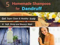 5 Homemade Anti-Dandruff Shampoos: Get Clean & Clear Scalp - hair buddha Dandruff Remedy, Anti Dandruff Shampoo, Diy Shampoo, Homemade Shampoo, Hair Remedies, Homemade Skin Care, Natural Remedies, Hair Mask For Dandruff, Top