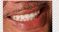 View and rate Dr. Burch's work on Rankipedia. Orthodontics, porcelain and bleaching :  http://www.rankipedia.com/dentist/dentistprofile/Dr-Stephen-Edward-Burch-DDS-McLean/22102/id/86538