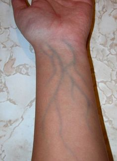 Freaking people out with your visible blue veins